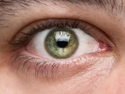 Ezért elengedhetetlen a szemkörnyék bőrének napi ápolása