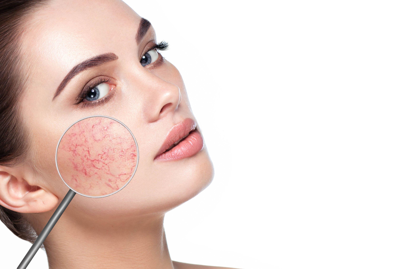 Hogyan segíthetnek a rosacea elleni krémek?