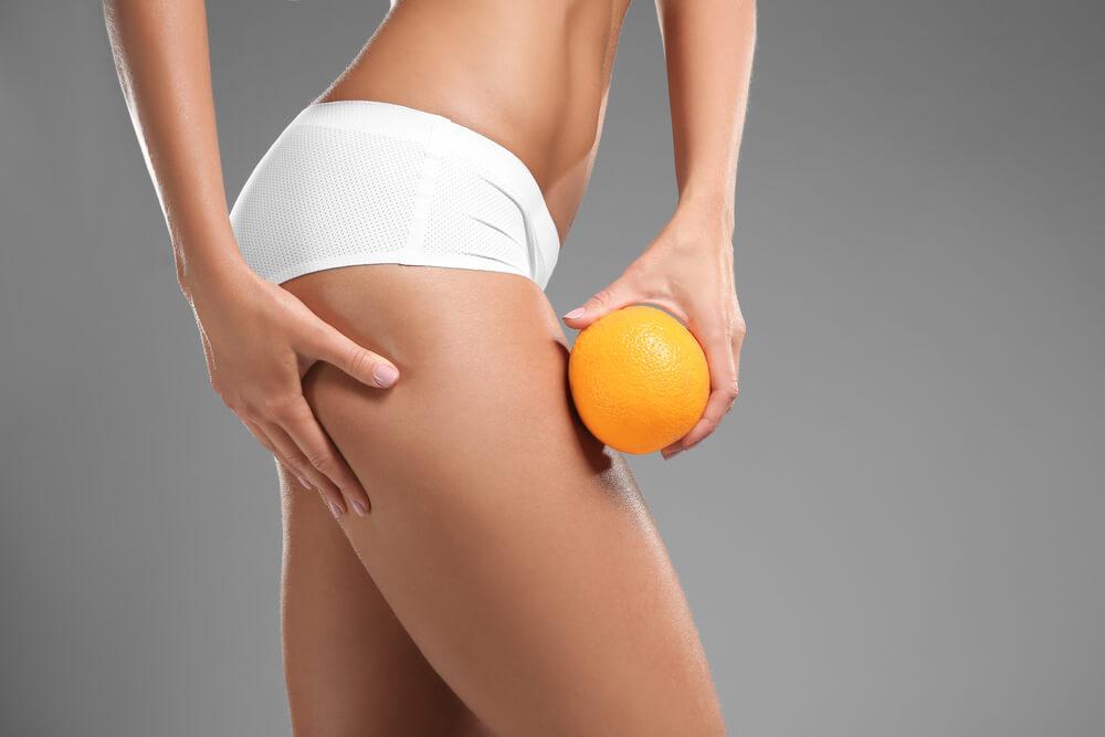 Tudnivalók a narancsbőrről - mitől alakul ki, mit lehet tenni ellene?
