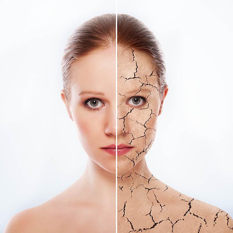 Vízhiányos bőr